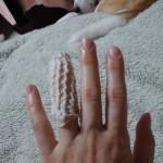 突然ですが、、指の骨くだけました